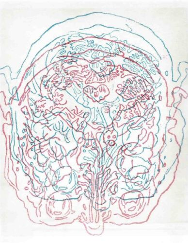 KIKI SMITH 'Untitled (Cross-Section of Head)', 1995 SIGNED Limited Edition Print