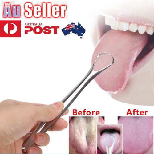 Stainless Steel Tongue Tounge Cleaner Scraper Dental Care Oral Hygiene Mouth Kit