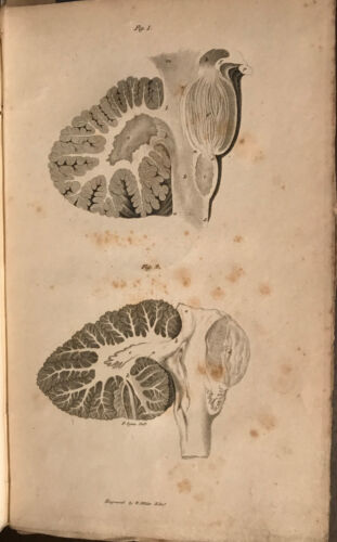 GORDON Observations on the structure of the brain frenologia 1817