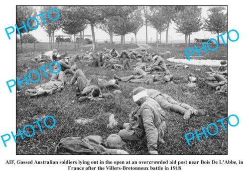 OLD LARGE PHOTO WWI AIF ANZACS GASSED SOLDIERS VILLERS-BRETONNEUX BATTLE 19171914 - 1918 (WWI) - 13962