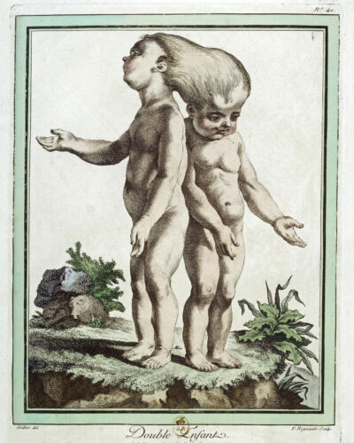 Vintage Conjoined Siamese Twin Anatomy Medical Chart Painting Canvas Art Print
